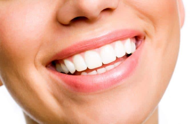 Cómo encontrar un dentista para fundas